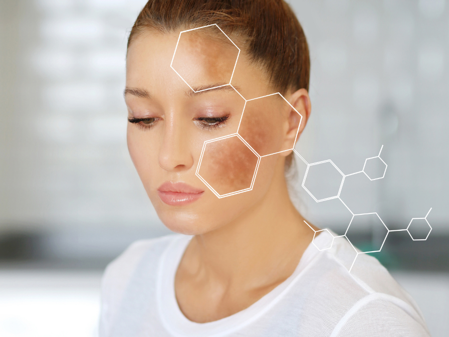 Post-Summer Skin Repair: How to Treat Hyperpigmentation